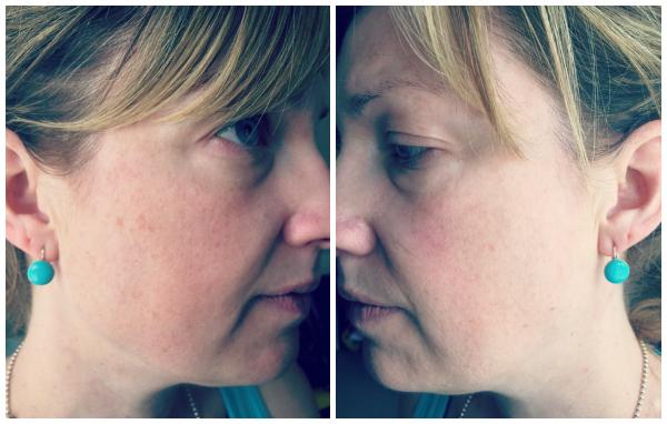 Newa After 30 Treatments